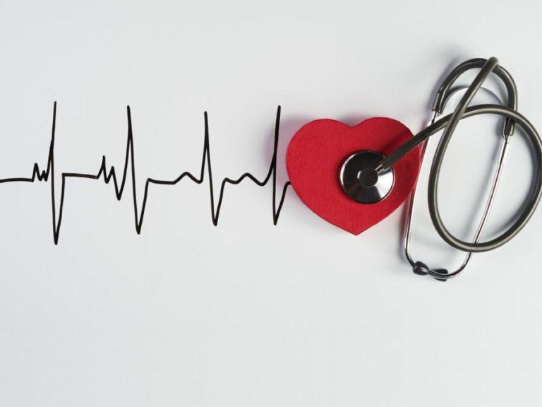 Síntomas de una arritmia cardíaca